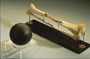 Sickles leg. Courtesy of Wikipedia.